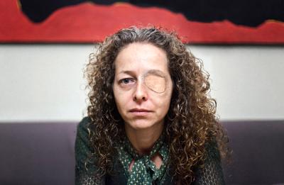 Medikuak sinesgarritasuna eman dio Bartzelonan begia galdu zuen emakumearen bertsioari
