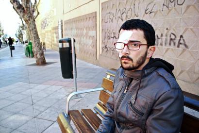 200.000 euroko kalte-ordaina Katalunian gomazko pilotakadaz begia galdu zuen gazte bati