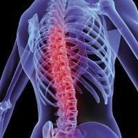 Osteoporosiari aurre egiteko aholkuak