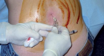 Meningitisa: gauzak argitu nahian