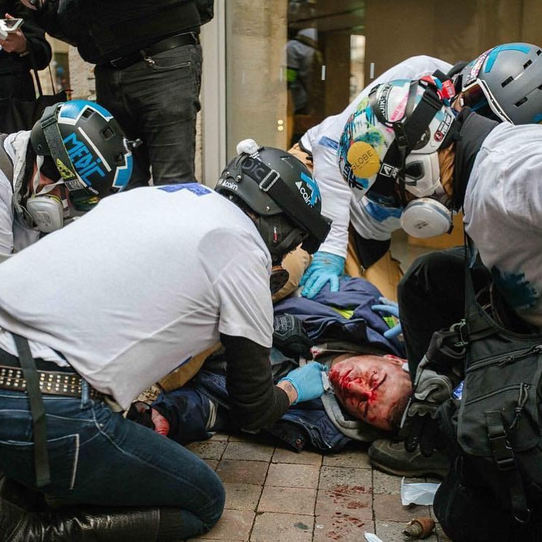 TOLOSAKO BOLUNTARIOAK. Gurutze Urdina taldekoak poliziaren flash ball batek musuan zauritutako herritarra artatzen, espaloian.